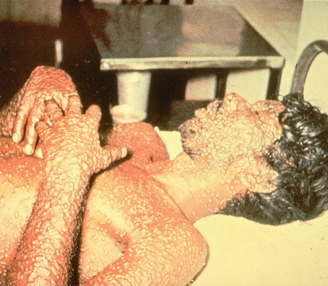 a man lays on a bed covered in smallpox sores